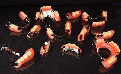 義歯(入れ歯)の種類もさまざまです。