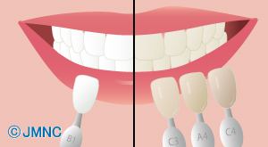 歯のエステ/ホワイトニング治療