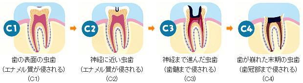 C1 歯の表面の虫歯(エナメル質が侵される)C2神経に近い虫歯(エナメル質が侵される)C3神経まで進んだ虫歯(骨髄まで侵される)C4歯が崩れた末期の虫歯(歯冠部まで侵される)