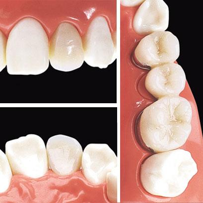 銀歯から、見た目もキレイな白い歯へ