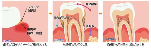 歯周病の進行と治療について 歯垢が溜まりプラークが形成される 動揺度がひどくなる 歯槽骨が吸収され歯が抜ける