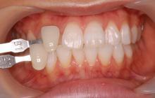 After:真っ白な歯になりました