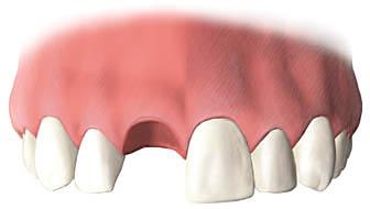 歯を失った状態